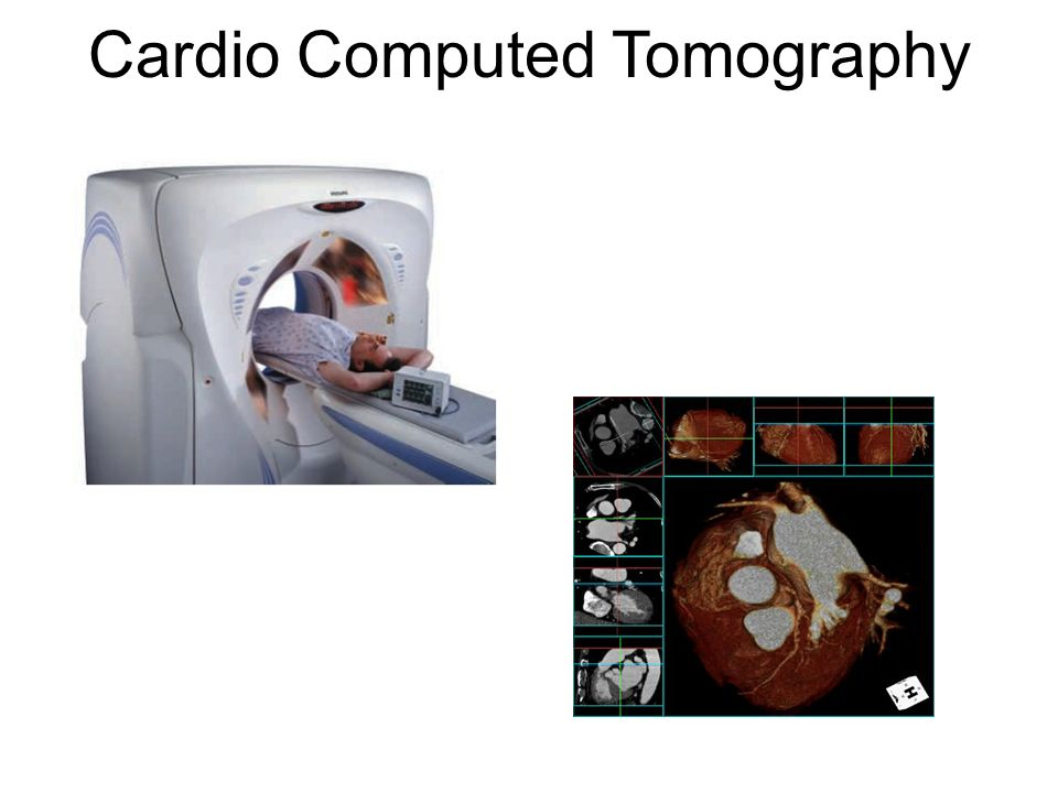 Cardio Computed Tomography