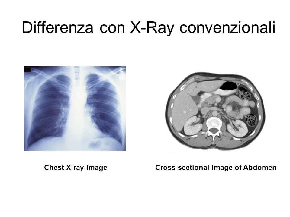 Differenza con X-Ray convenzionali