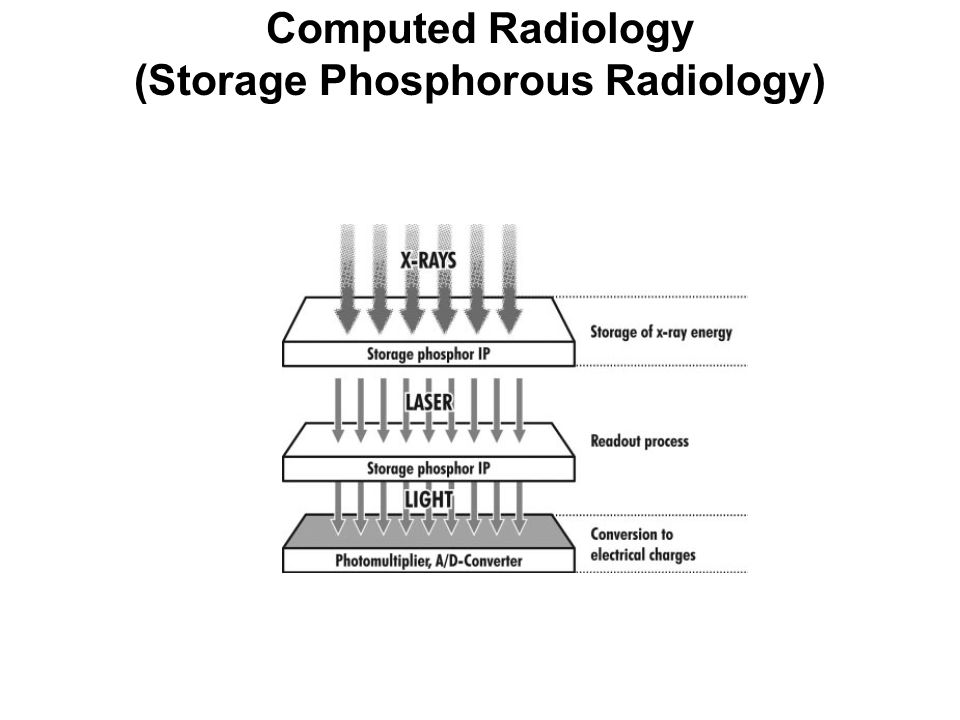 Computed Radiology (Storage Phosphorous Radiology)