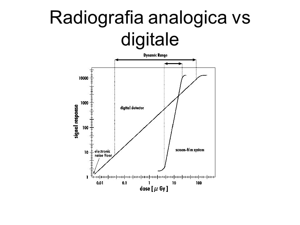 Radiografia analogica vs digitale