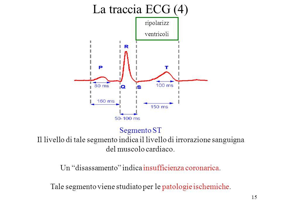 La traccia ECG (4) Segmento ST