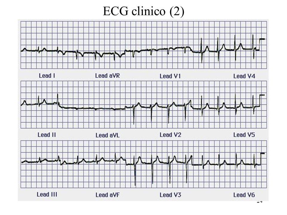 ECG clinico (2)
