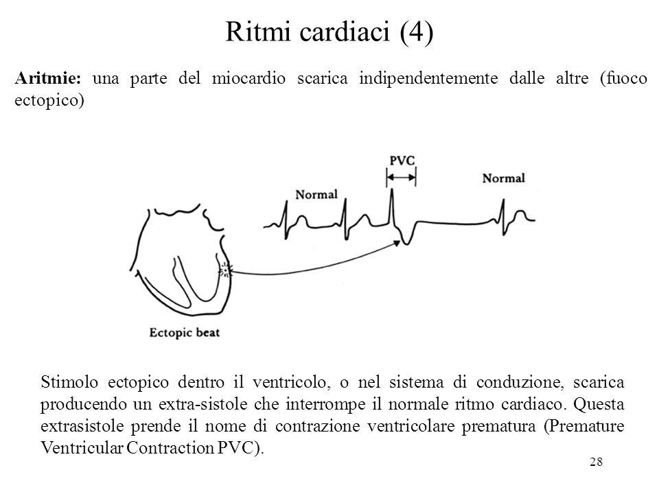 Ritmi cardiaci (4) Aritmie: una parte del miocardio scarica indipendentemente dalle altre (fuoco ectopico)