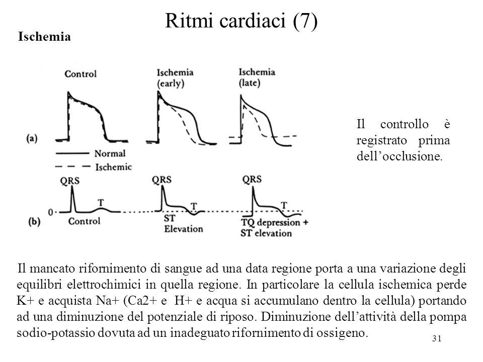Ritmi cardiaci (7) Ischemia