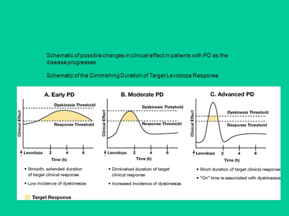 Schematic of possible changes in clinical effect in patients with PD as the disease progresses. Schematic of the Diminishing Duration of Target Levodopa Response