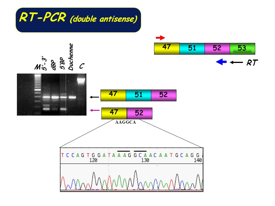 RT-PCR (double antisense)