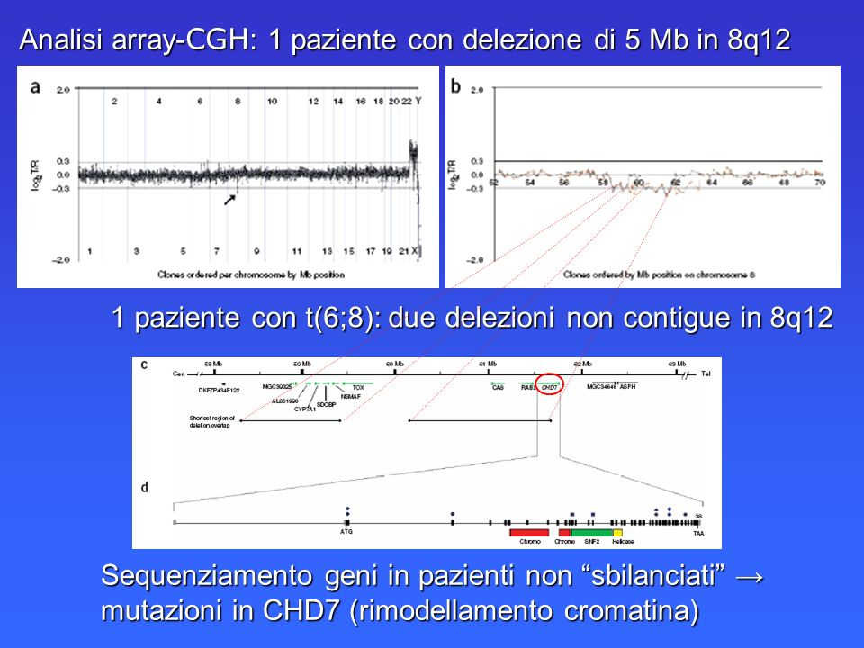 Analisi array-CGH: 1 paziente con delezione di 5 Mb in 8q12