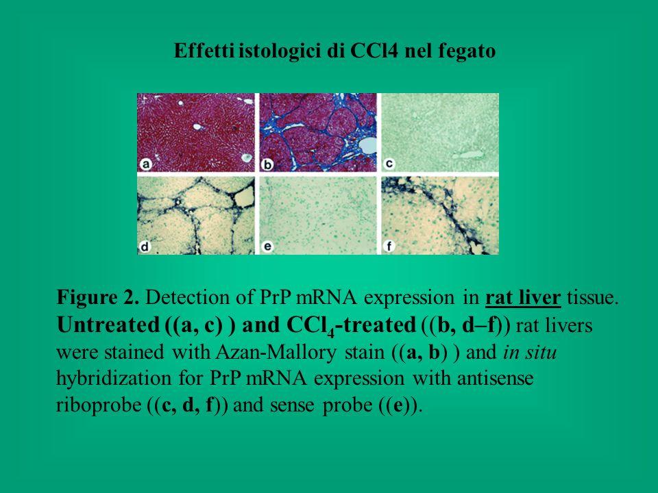 Effetti istologici di CCl4 nel fegato
