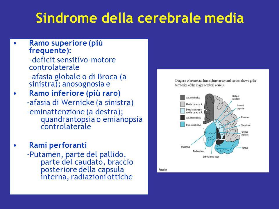 Sindrome della cerebrale media