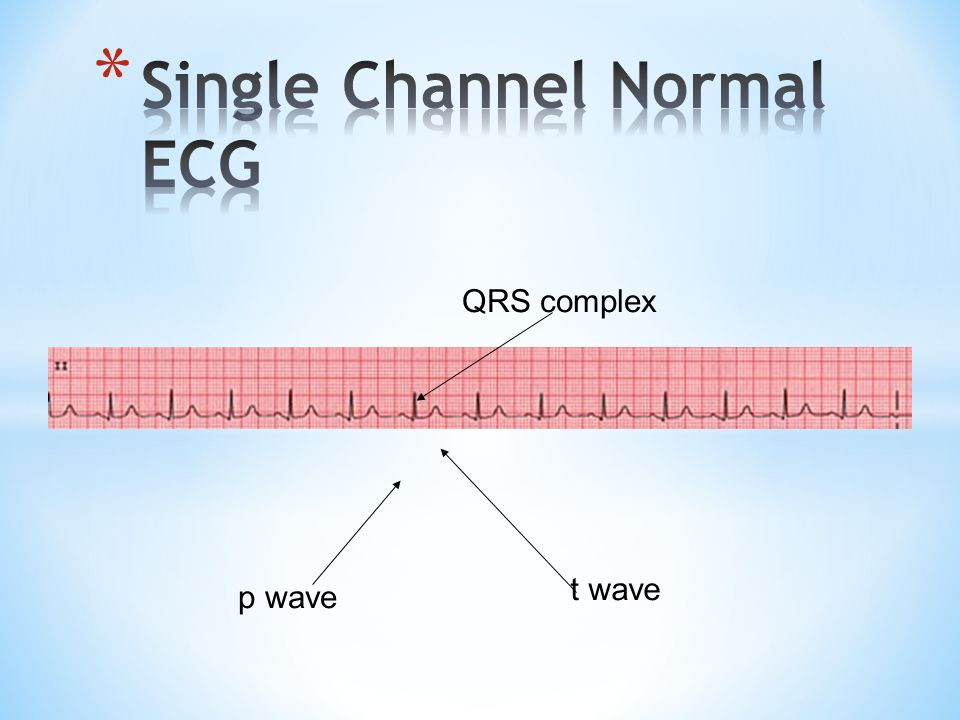 Single Channel Normal ECG