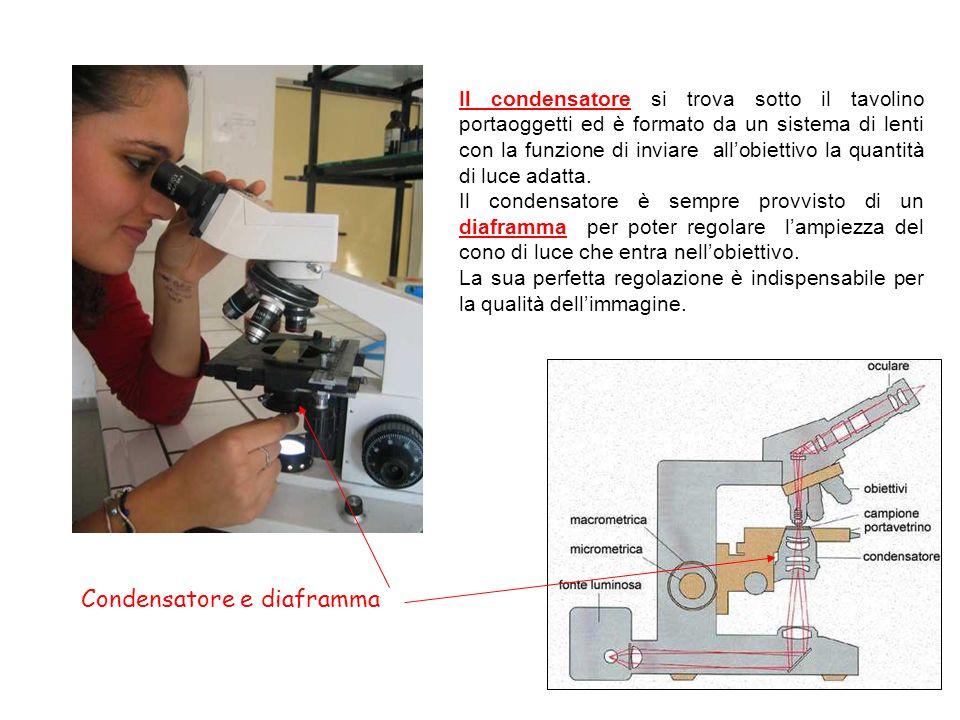 Condensatore e diaframma