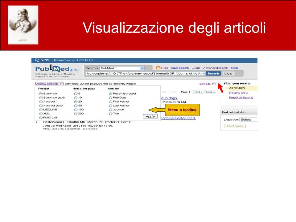 Visualizzazione degli articoli