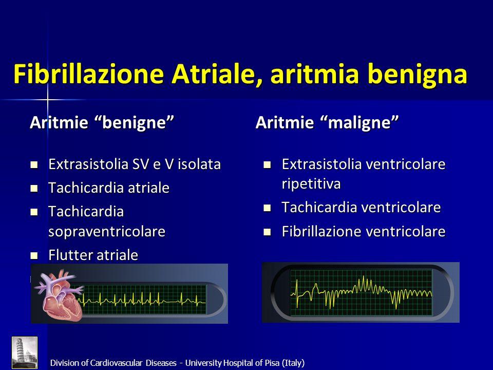 Fibrillazione Atriale, aritmia benigna