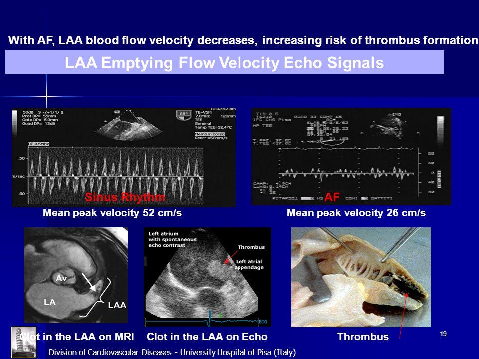 LAA Emptying Flow Velocity Echo Signals