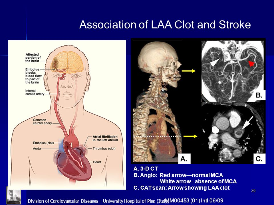 Association of LAA Clot and Stroke