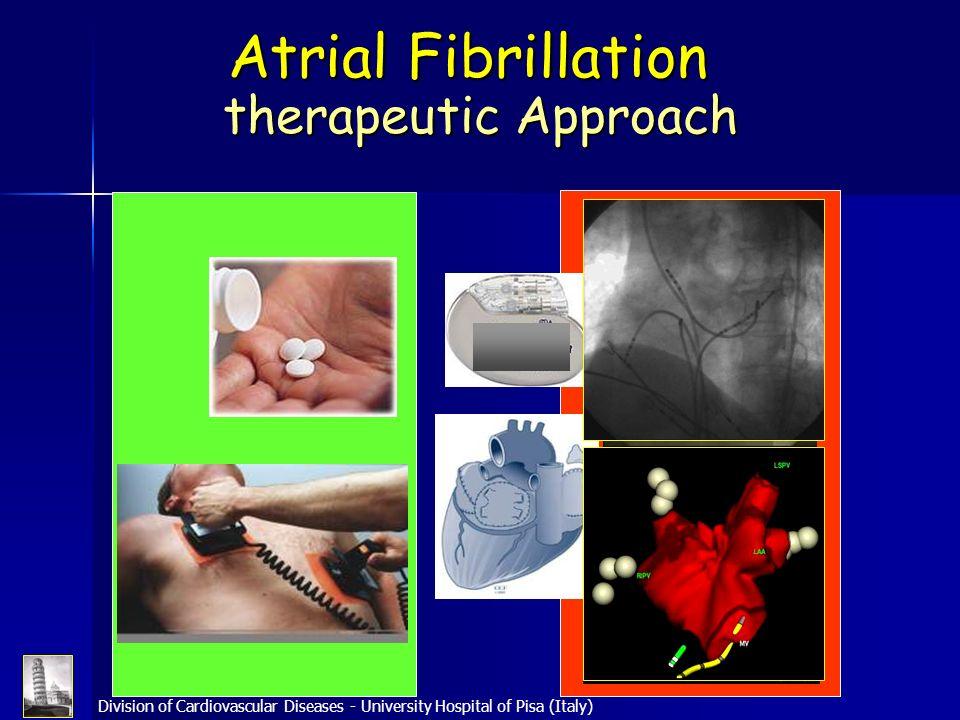 Atrial Fibrillation therapeutic Approach