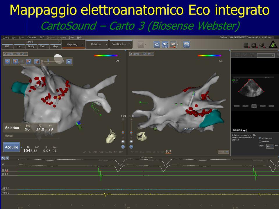 Mappaggio elettroanatomico Eco integrato