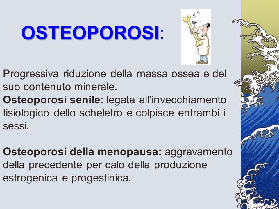 OSTEOPOROSI: Progressiva riduzione della massa ossea e del suo contenuto minerale. Osteoporosi senile: legata all'invecchiamento.
