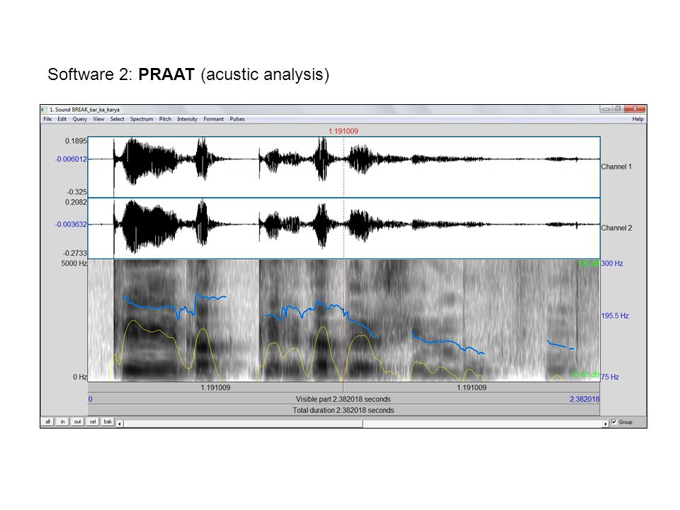 Software 2: PRAAT (acustic analysis)
