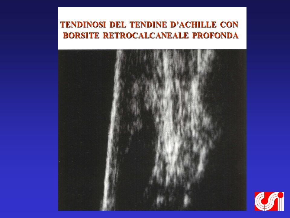 TENDINOSI DEL TENDINE D'ACHILLE CON BORSITE RETROCALCANEALE PROFONDA