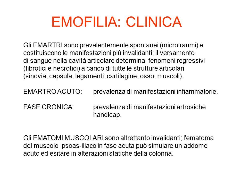 EMOFILIA: CLINICA Gli EMARTRI sono prevalentemente spontanei (microtraumi) e. costituiscono le manifestazioni più invalidanti; il versamento.