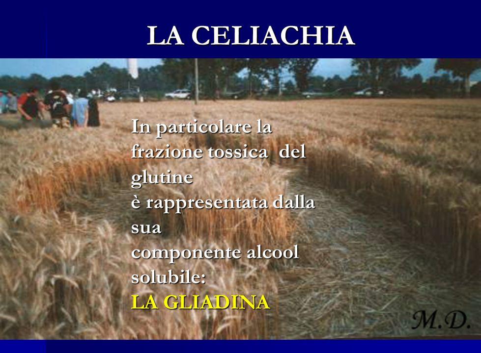 LA CELIACHIA Definizione di celiachia (CD):