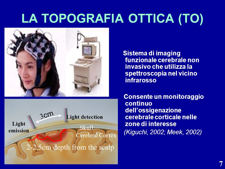LA TOPOGRAFIA OTTICA (TO)