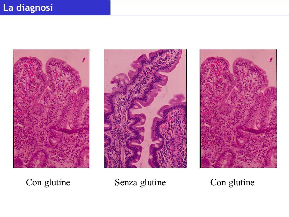 La diagnosi Con glutine Senza glutine Con glutine