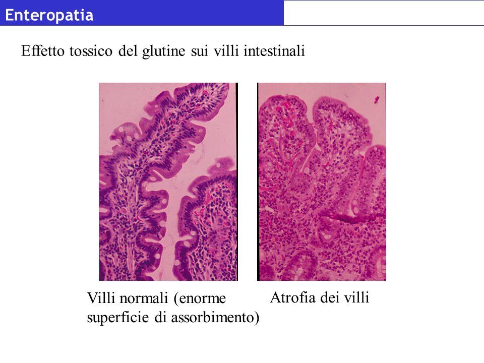 Enteropatia Effetto tossico del glutine sui villi intestinali. Villi normali (enorme superficie di assorbimento)