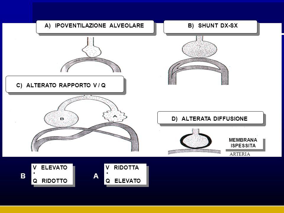 . . B A A) IPOVENTILAZIONE ALVEOLARE B) SHUNT DX-SX