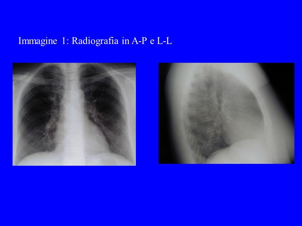 Immagine 1: Radiografia in A-P e L-L