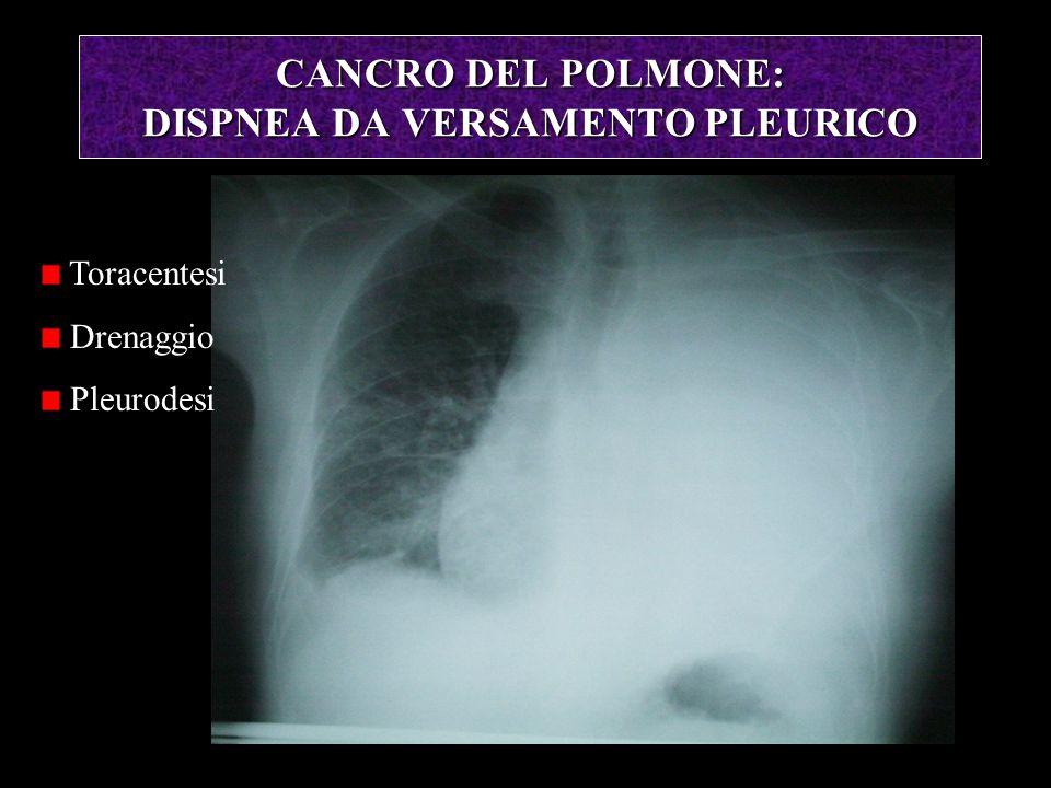 CANCRO DEL POLMONE: DISPNEA DA VERSAMENTO PLEURICO