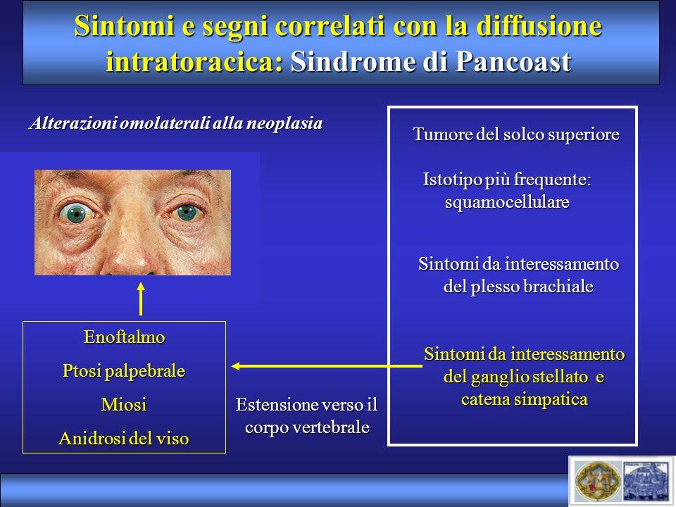 Sintomi e segni correlati con la diffusione intratoracica: Sindrome di Pancoast