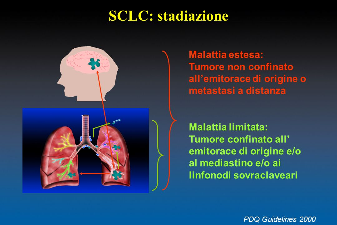 SCLC: stadiazione Malattia estesa:
