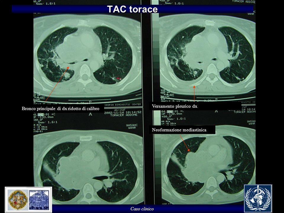 TAC torace Versamento pleurico dx