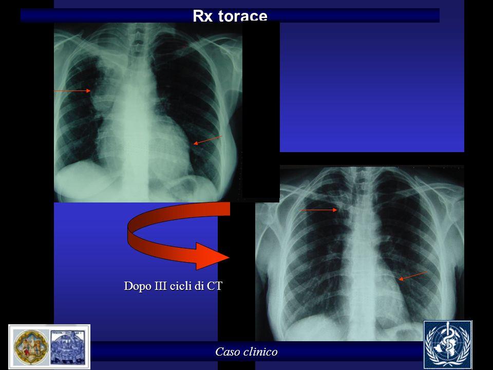 Rx torace Dopo III cicli di CT Caso clinico