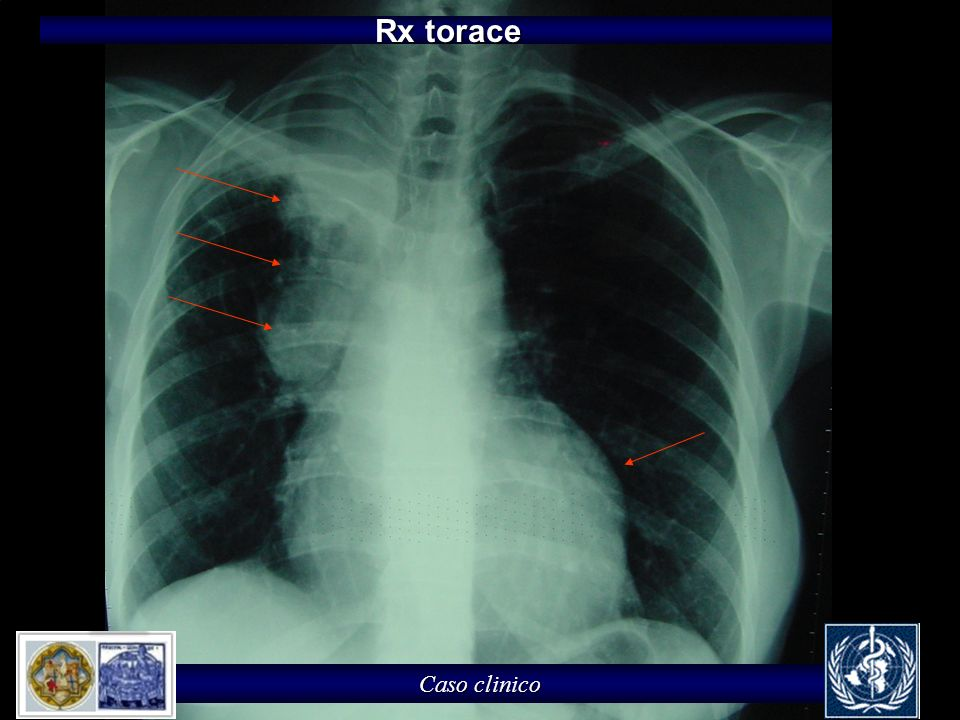 Rx torace Caso clinico