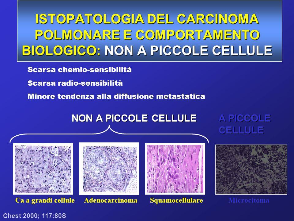 ISTOPATOLOGIA DEL CARCINOMA POLMONARE E COMPORTAMENTO BIOLOGICO: NON A PICCOLE CELLULE