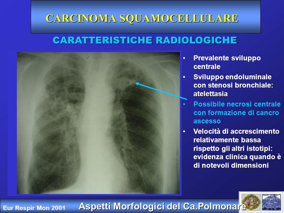 CARCINOMA SQUAMOCELLULARE