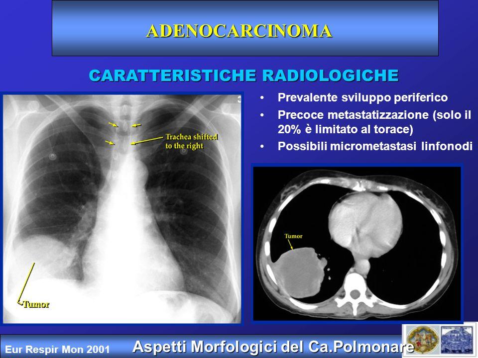 ADENOCARCINOMA CARATTERISTICHE RADIOLOGICHE