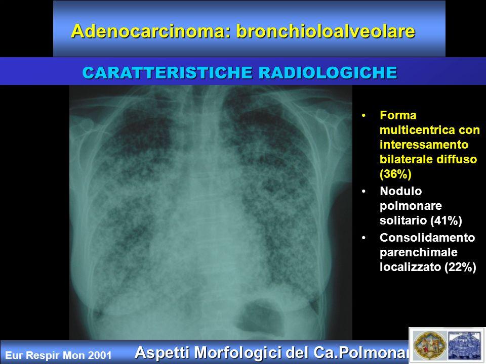 Adenocarcinoma: bronchioloalveolare