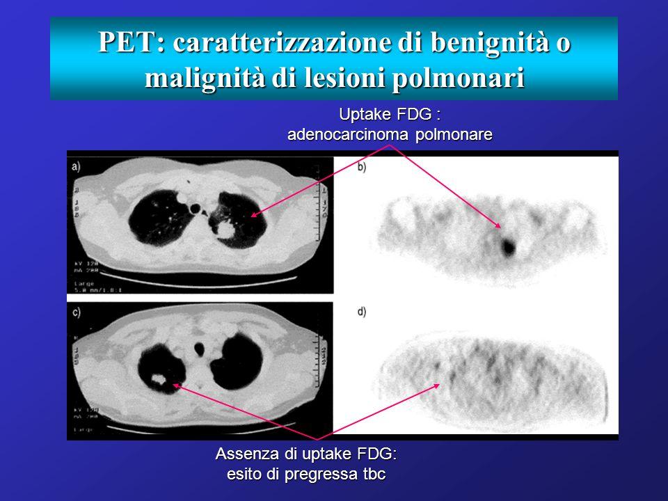 PET: caratterizzazione di benignità o malignità di lesioni polmonari