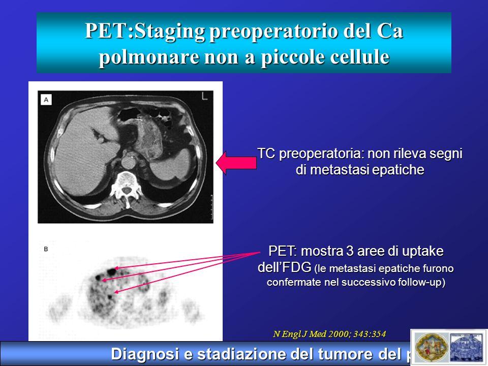 PET:Staging preoperatorio del Ca polmonare non a piccole cellule