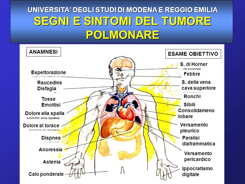 UNIVERSITA' DEGLI STUDI DI MODENA E REGGIO EMILIA SEGNI E SINTOMI DEL TUMORE POLMONARE