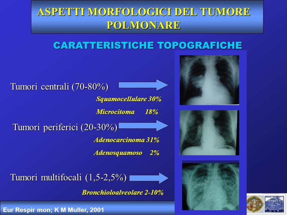ASPETTI MORFOLOGICI DEL TUMORE POLMONARE