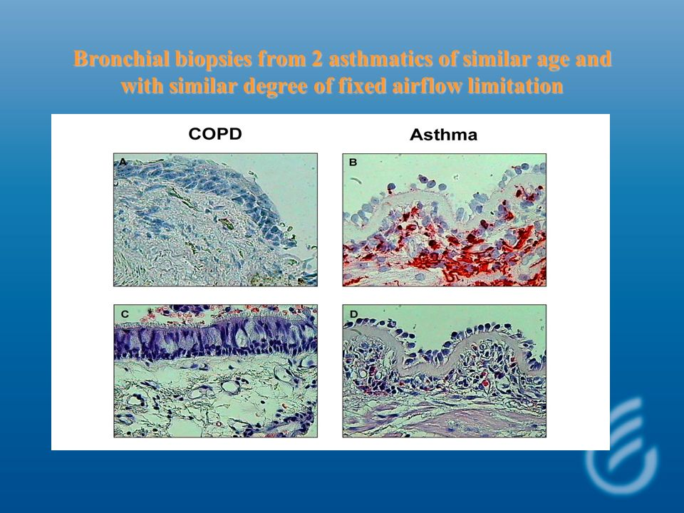 Bronchial biopsies from 2 asthmatics of similar age and with similar degree of fixed airflow limitation