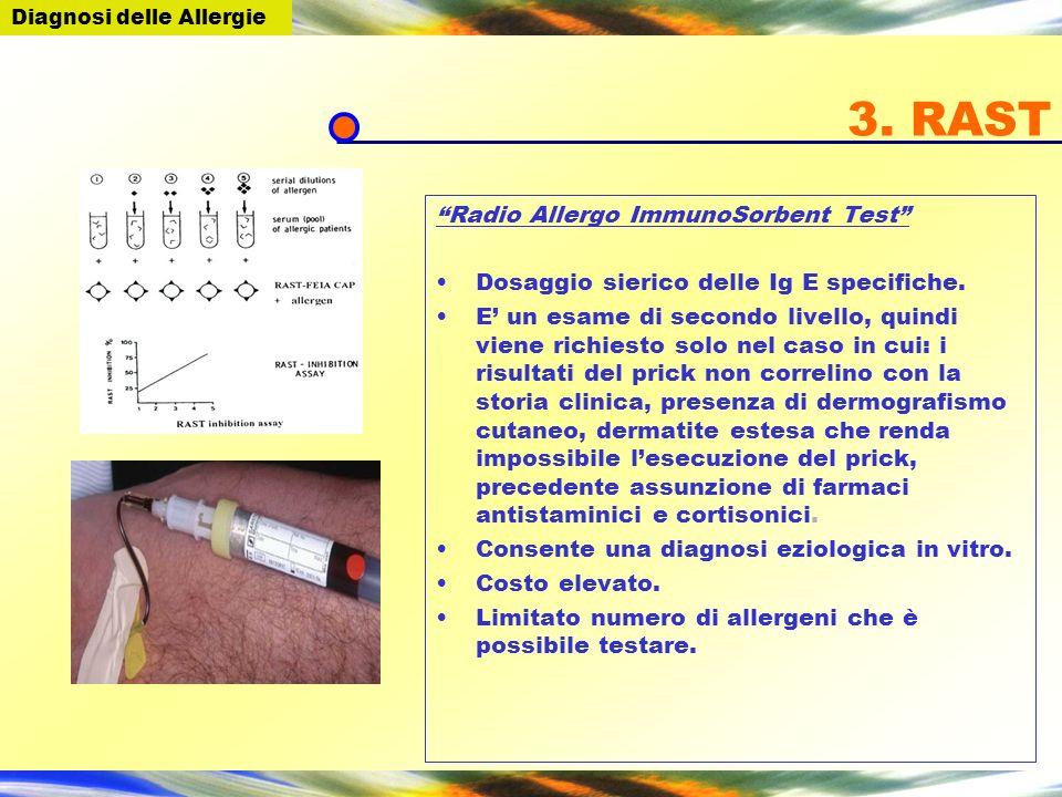 3. RAST Radio Allergo ImmunoSorbent Test