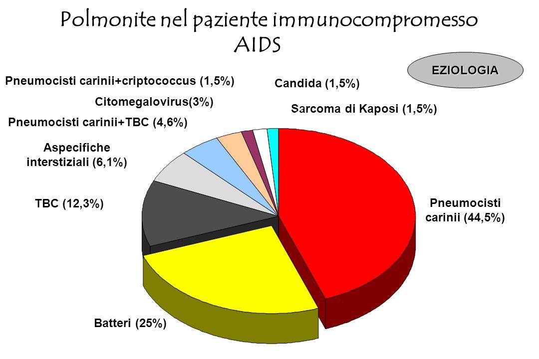 Polmonite nel paziente immunocompromesso AIDS