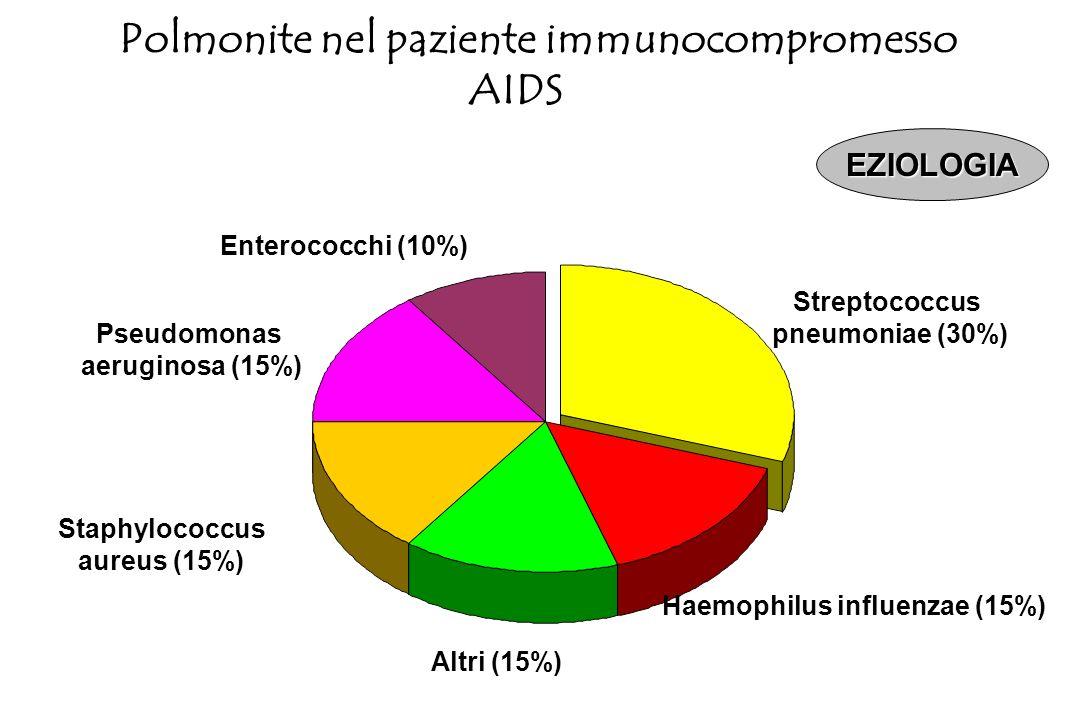 Polmonite nel paziente immunocompromesso Haemophilus influenzae (15%)