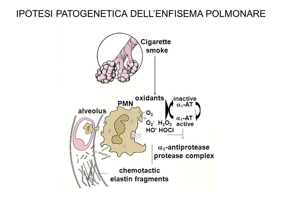 IPOTESI PATOGENETICA DELL'ENFISEMA POLMONARE